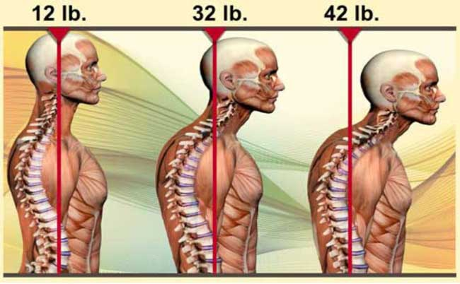 bad posture from playing video games